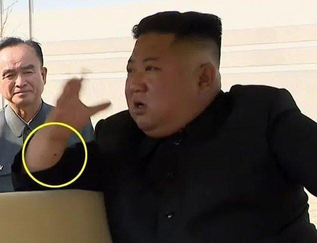 جای سوزن روی مچ رهبر کره شمالی ، چه بلایی سر کیم جونگ اون آمده است؟